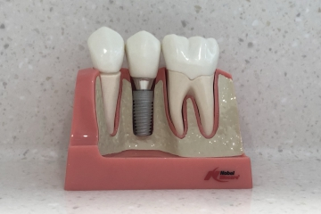 Replace a missing tooth with dental implants