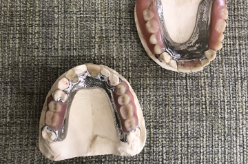 Dentures are a common solution for replacing teeth that have been lost or removed