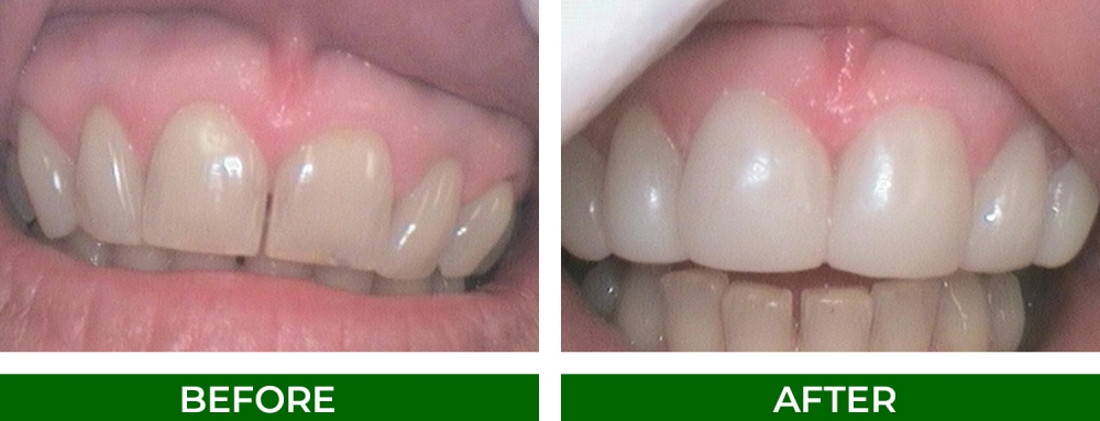 Before and after composite veneers dental restoration to reduce gaps between teeth at Fullarton Park Dental in Adelaide SA