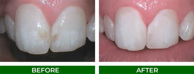 Microabrasion improves the colour of your tooth color by removing the discoloured sports on the enamel